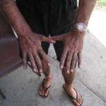 Mein Hände nach der Arbeit